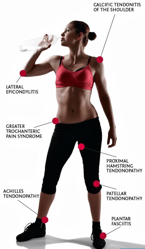 chronic-tendon-problems